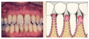 early stage of periodontitis